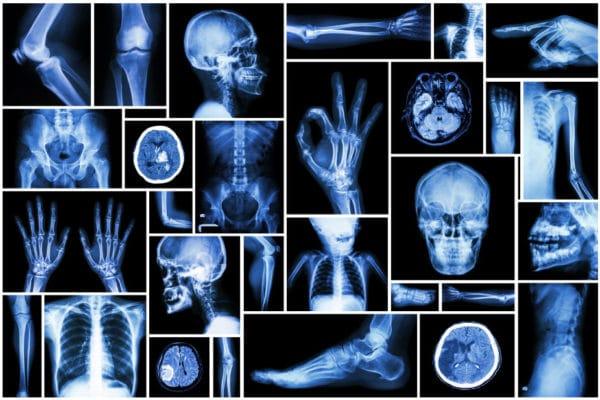 radiographie deeplink medical